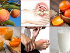 Gout Remedies: That Treat Gout Symptoms Without Harmful Drugs