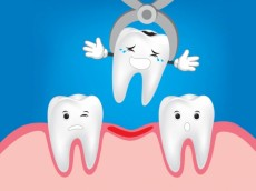 Dental Problems that You May Encounter